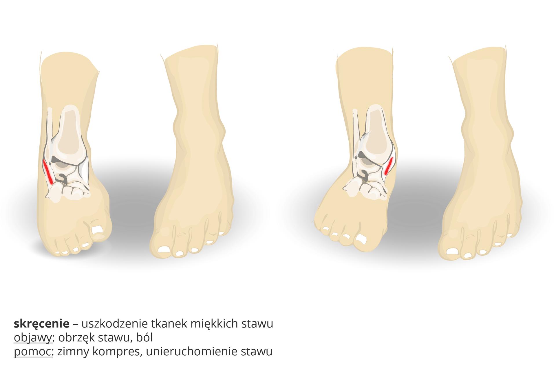 Ilustracja przedstawia dwie pary stóp, zwrysowanymi wjednej kośćmi istawem skokowym. Czerwone kreski wskazują miejsce urazu: skręcenia, czyli uszkodzenia tkanek miękkich stawu. Objawy: obrzęk stawu, ból. Pomoc: zimny kompres, unieruchomienie stawu.