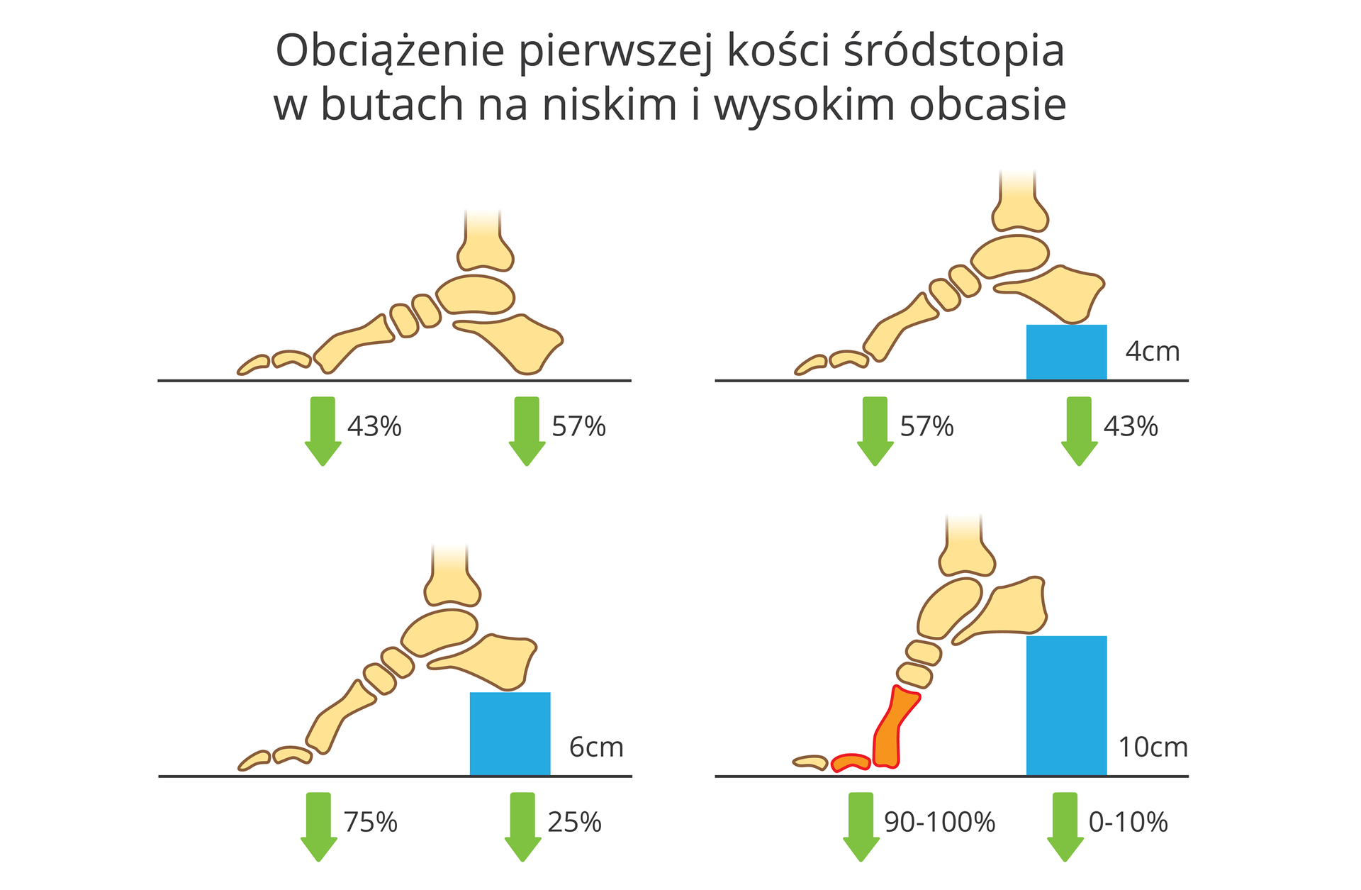 Ilustracja przedstawia 4 rysunki kości stopy wkolorze morelowym, zboku, na poziomej kresce. Na niebiesko zaznaczono obcasy oróżnej wysokości iukład kości wbutach na takim obcasie. Pierwsza zlewej ugóry stopa bez obcasa. Zielone strzałki wskazują procentowe rozłożenie ciężaru ciała na pierwszą kość śródstopia (43 procent) ikość piętową (57 procent). Zprawej stopa na obcasie owysokości 4 centymetrów. Kość śródstopia obciążona wpięćdziesięciu siedmiu procentach, kość piętowa wczterdziestu trzech procentach. Udołu na obcasie sześciocentymetrowym kość śródstopia obciążona wsiedemdziesięciu pięciu procentach, pieta wdwudziestu pięciu procentach. Na obcasie owysokości 10 centymetrów kość śródstopia dźwiga 90 do 100 procent ciężaru ciała. Zaznaczono to kolorem ciemnopomarańczowym.