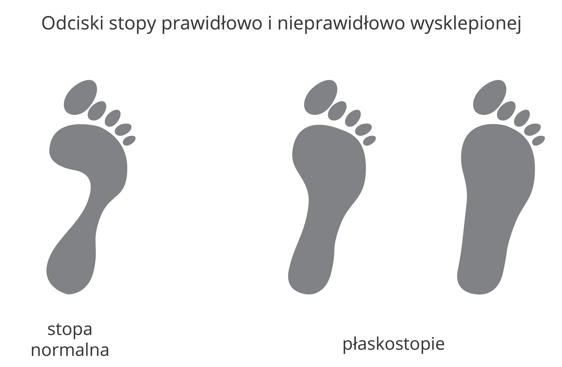 Wgalerii znajdują się dwie plansze, poświęcone przyczynom iskutkom wad stóp. Ilustracja przedstawia 3 czarne odciski stóp (prawa noga). Zlewej stopa normalna, zprawej dwie stopy oróżnym stopniu płaskostopia.