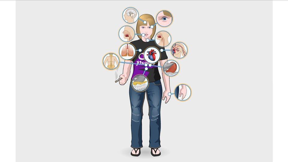 Aplikacja przedstawia wpływ palenia tytoniu na narządy wewnętrzne. Wcentralnej części postać młodej dziewczyny wczarnej koszulce iniebieskich spodniach zpapierosem wdłoni. Białymi kropkami zaznaczono poszczególne narządy. Od nich powiększenia zobrazkami narządów. Od góry zgodnie zkierunkiem zegara: oczy, krtań, naczynia krwionośne, żołądek, skóra, trzustka, kręgosłup, płuca, jama ustna, mózg. Pośrodku sylwetki zaznaczone serce. Po kliknięciu wilustrację narządu pojawia się na niebieskim tle informacja omożliwych zagrożeniach.