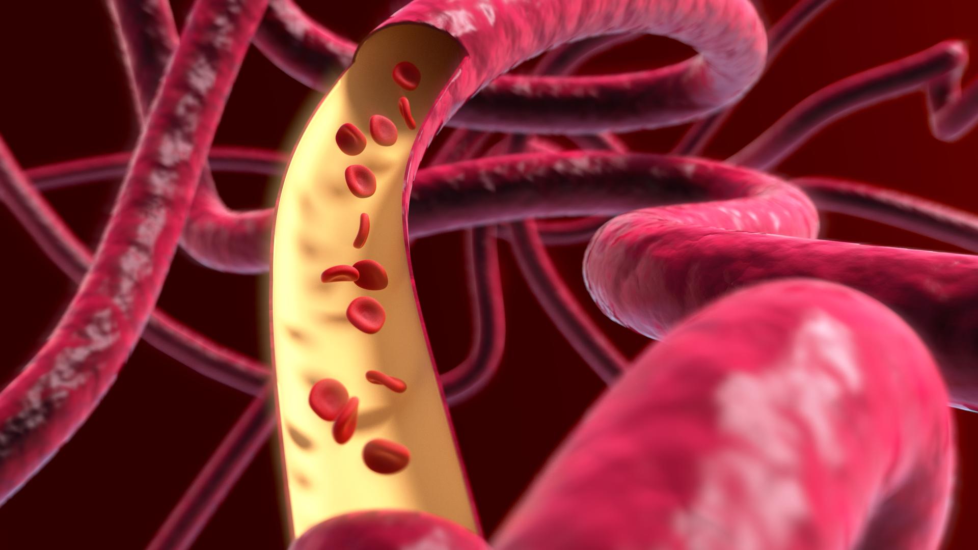 Ilustracja przedstawia zbliżenie giętkich, czerwonych przewodów – naczyń krwionośnych. Jedno ma wycięty fragment wzdłuż. Wprzestrzeni nad żółtą wyściółką unoszą się czerwone krwinki.