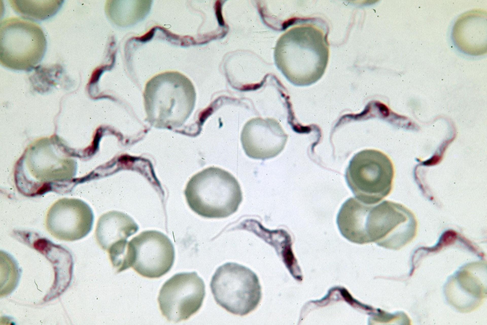 Fotografia spod mikroskopu przedstawia zielonkawe, okrągłe krwinki, amiędzy nimi pofalowane ciemne kształty. To pierwotniak świdrowiec gambijski, który żeruje we krwi ssaków ipowoduje śpiączkę.