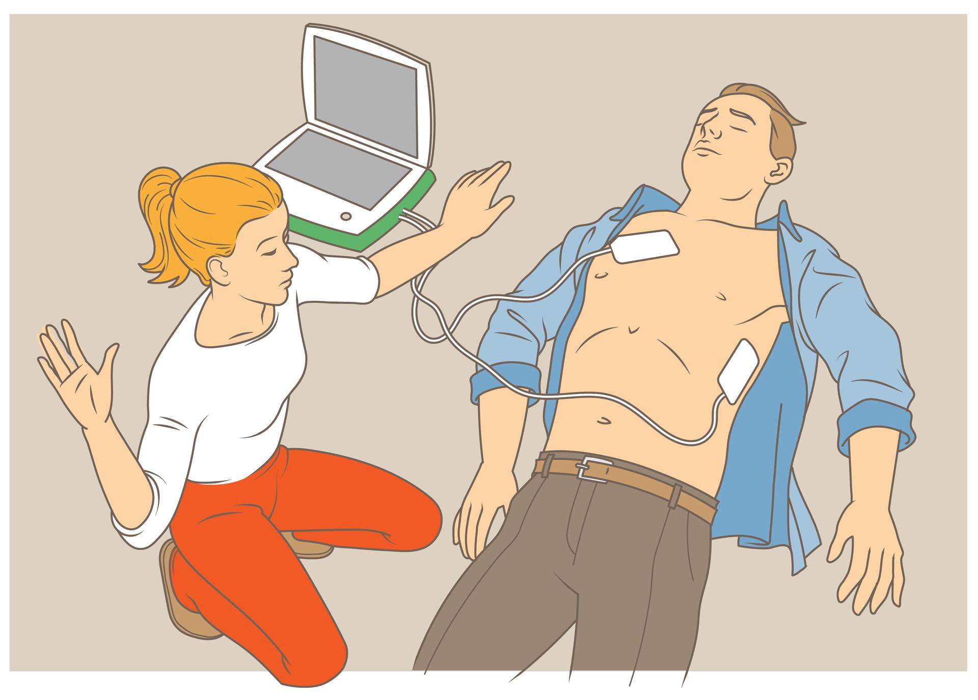 Ilustracja przedstawia sposób użycia defibrylatora AED. Widok zgóry. Po prawej stronie poszkodowany nieprzytomny mężczyzna leży na plecach. Koszula rozpięta. Ręce swobodnie ułożone wzdłuż ciała. Na klatce piersiowej, po lewej, iponiżej klatki, po prawej, przytwierdzone elektrody defibrylatora. Płaskie elektrody wkształcie małych prostokątów. Elektrody połączone przewodami do głównego defibrylatora. Obok poszkodowanego, po lewej stronie, kobieta udzielająca pomocy. Kobieta wprzysiadzie, ręce uniesione aby nie dotykać poszkodowanego wtrakcie użycia defibrylatora.