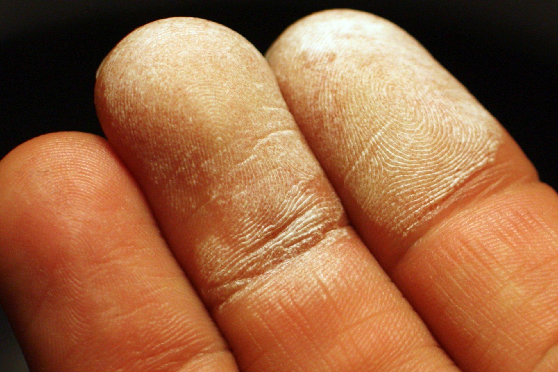 Zdjęcie przedstawia opuszki trzech palców ludzkiej dłoni, wskazującego, środkowego iserdecznego wzbliżeniu na czarnym tle. Dwa pierwsze pokryte są białymi plamami martwego naskórka.