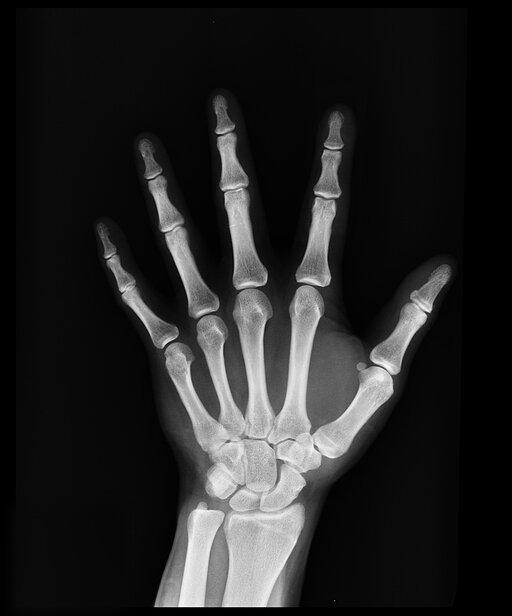 0823 Promieniowanie rentgenowskie - zastosowania